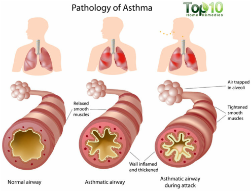 It Causes Chest Tightness Shortness Of Breath And Coughing Asthma Has No Cure Even When You Feel Fine Still Have The Disease Can Flare Up At
